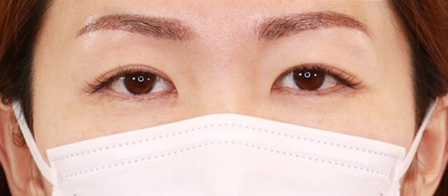 アートメイク2回目の施術直後の眉毛